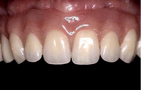 protesis dental removible 4.jpg