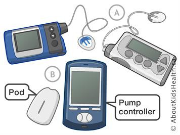 Insulin Pump Use and Exercise Strategies