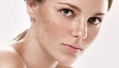 Freckles.jpeg