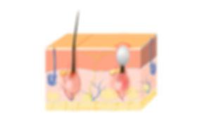 97934992-acne-vulgaris-or-pimple-the-seb