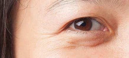 bags-under-eyes-1.jpg