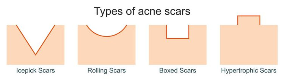content_type_of_acne_scars.jpg