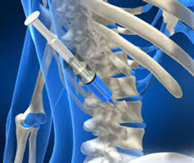 Injection image.jpg