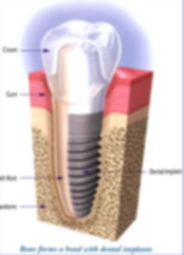 George Pegios de Dental Implant Specialist