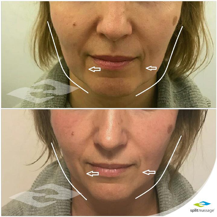 Pirms un pēc sejas modelēšanas kursa