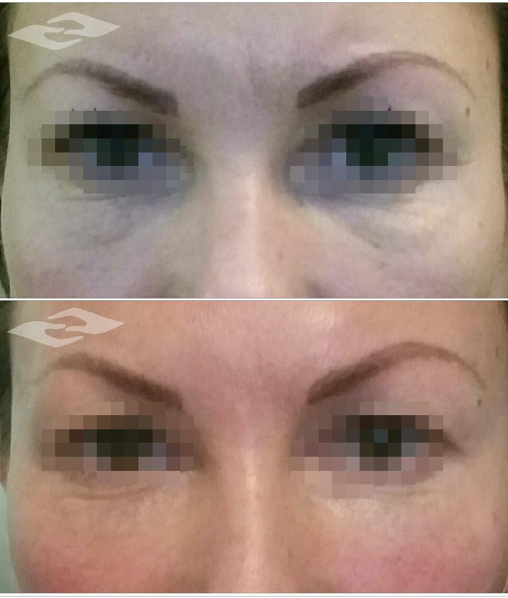 Pirms un pēc sejas masāžu kursa