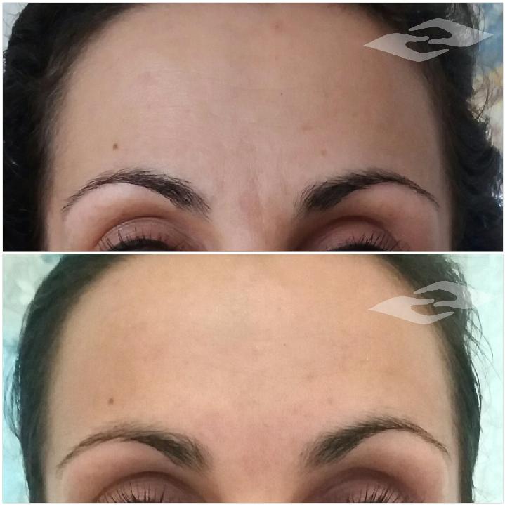 Pirms un pēc