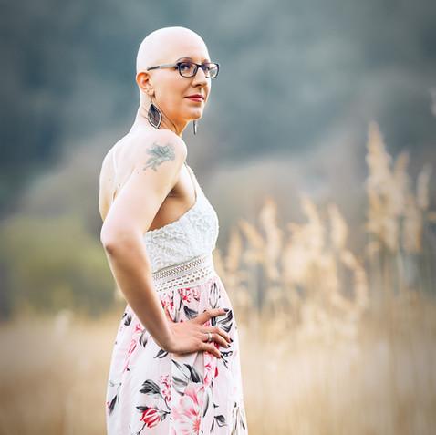 Bild 11 Portraitfotos Fotoshooting alopecia areata