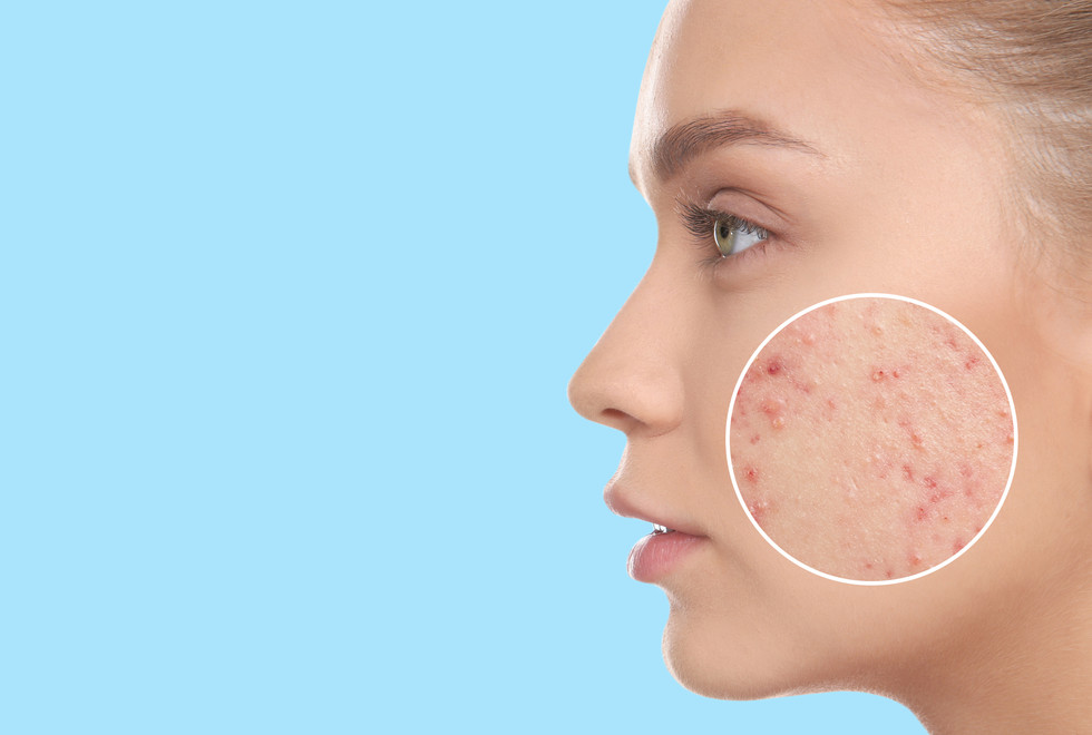 Young woman with acne problem on light b