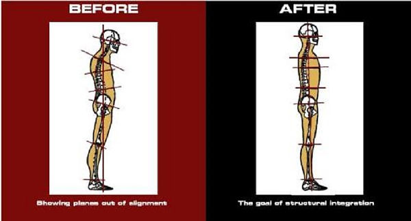 Before and After - rolfing.jpg
