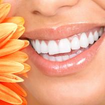 Teeth Whitening - $115
