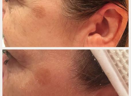Dermabrasion for Skin pigmentation and Blemishes