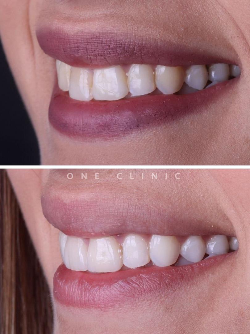 Branqueamento Dentário, Facetas Dentária