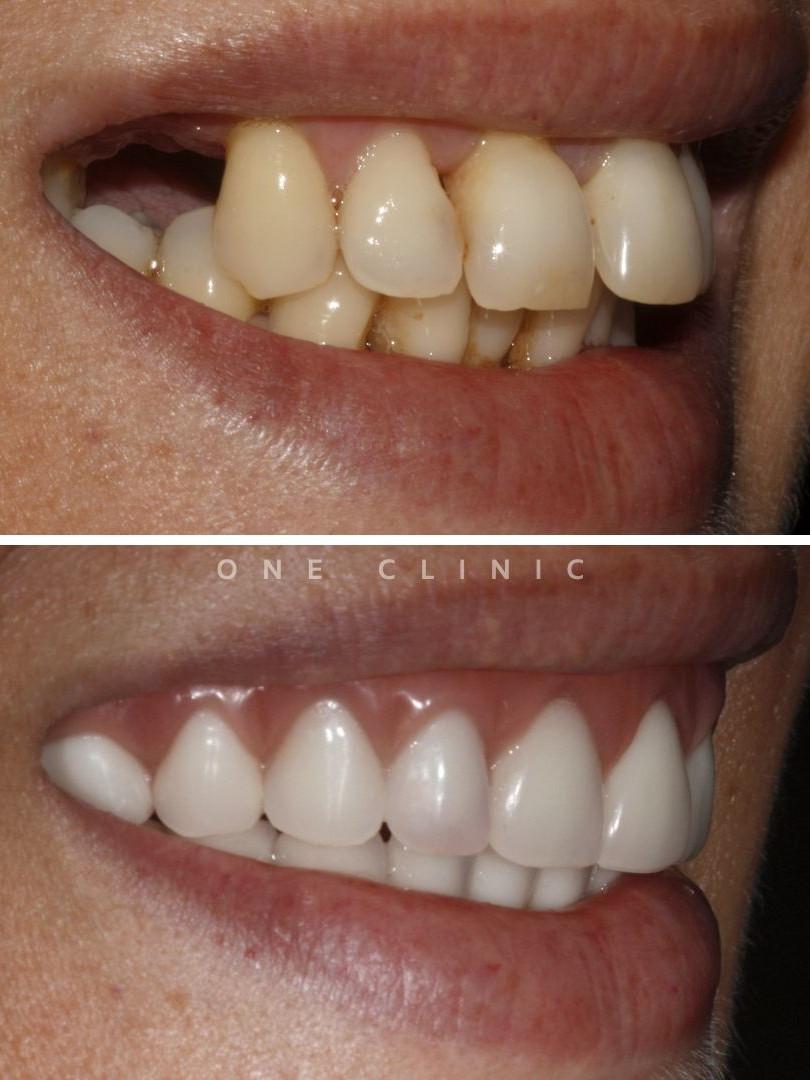 implantes dentes em um dia reabilitação oral one clinic