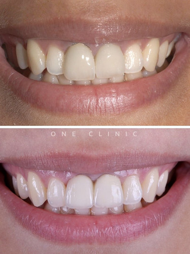 Implantes_Dentarios_-_One_Clinic.jpg