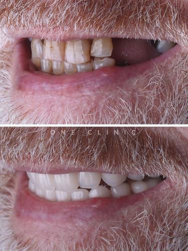 reabilitação oral carga imediata one clinic