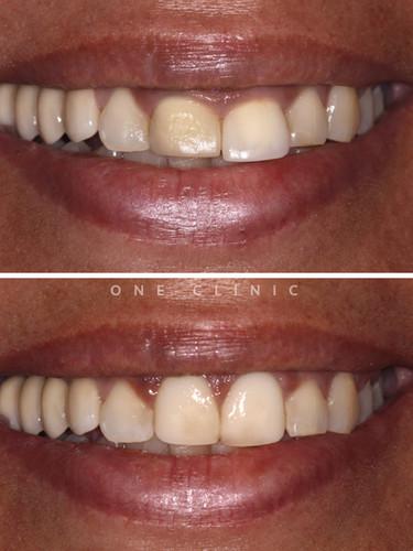 branqueamento dentário one clinic
