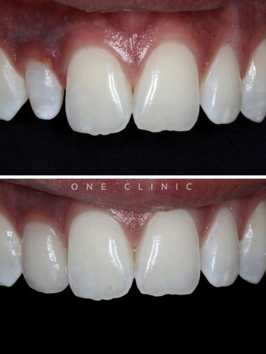 facetas branqueamento dentário one clinic