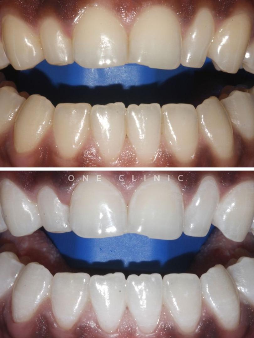 branqueamento dentário one clinic.jpg