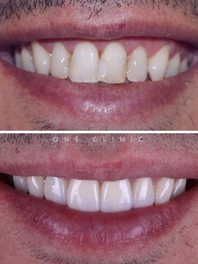 facetas dentárias one clinic