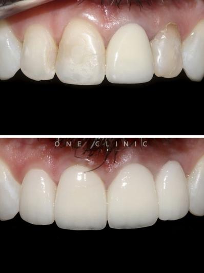 Facetas Dentárias - One Clinic.png