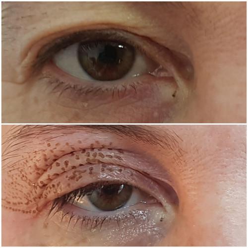 Plasma Augenlidstraffung direkt nach der Behandlung