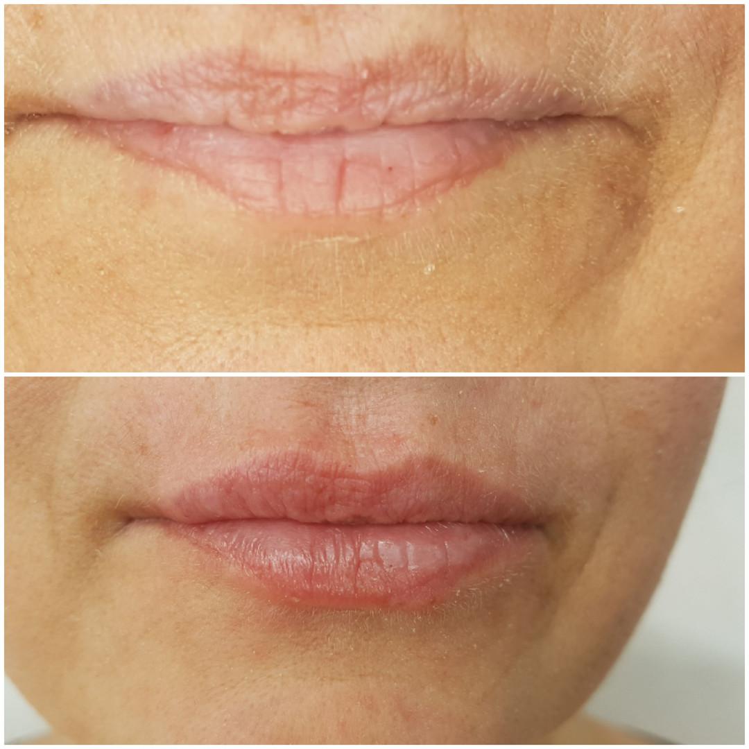 Lippen Aufpolstern Natürlich