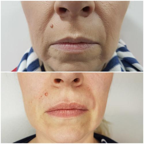 Lippen und Nasolabial Aufpolstern