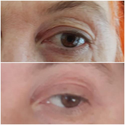 Plasma Augenlidstraffung nach 1 Woche Heillungsphase