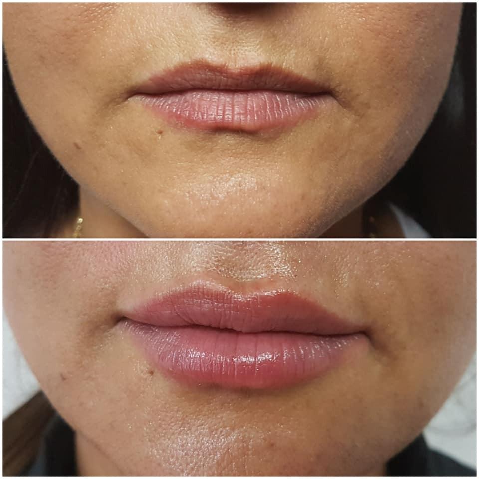 Lippen Stark Aufpolstern
