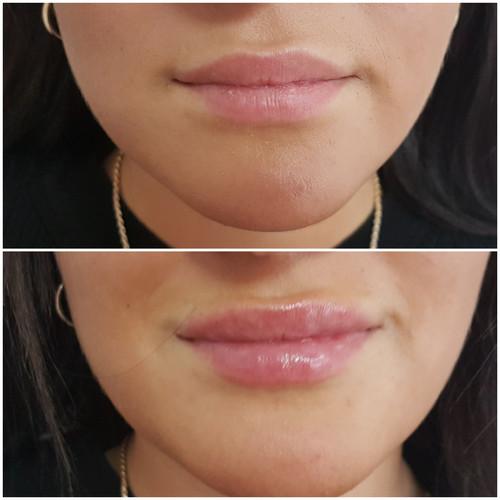 Hyaluron Lippen Volumen
