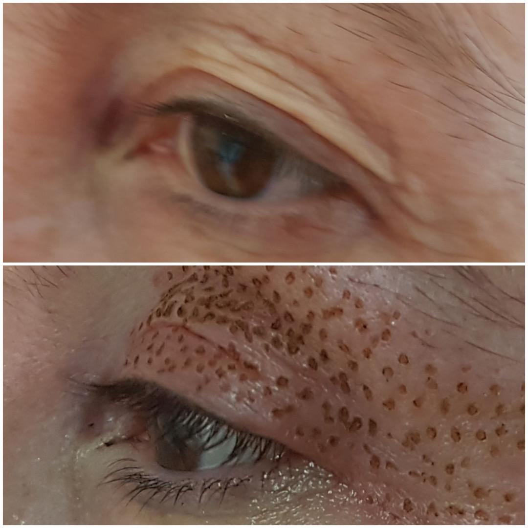 Plasma Augenlidstraffung