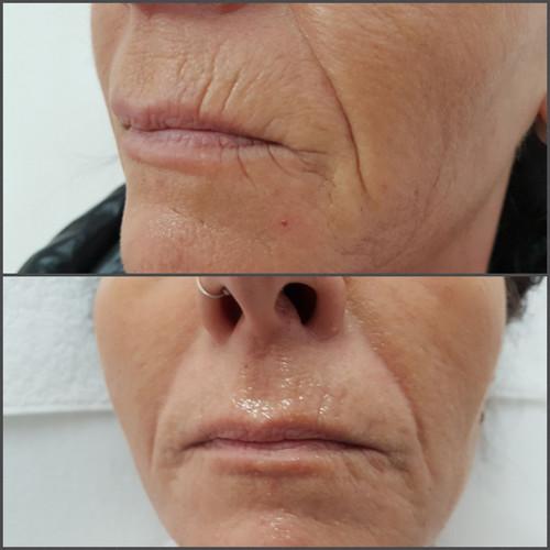 2Plasma Mimikfältchen Behandlung