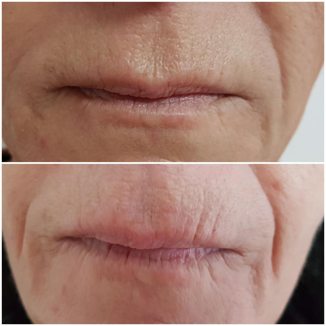 Lippenfältchen mit hyaluron