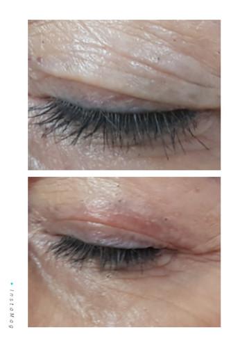Plasma Augenlidstraffung nach 1 Woche Heilungphase