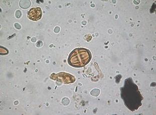 polen mangue.jpg