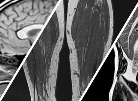 Curso de curta duração: Neuro, músculo, abdome e mama