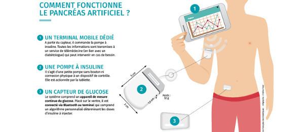 Fonctionnement du pancréas artificiel - Fédération française des diabétiques