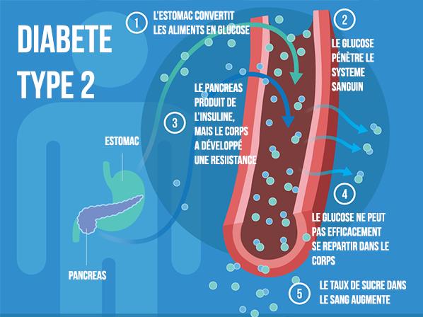 Insuline résiduelle dans le diabète de type 2 - LeBonMédicament.org