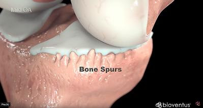 Mode OA_Bone Spurs.png