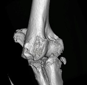 PhysioMyDog_Elbow arthritis