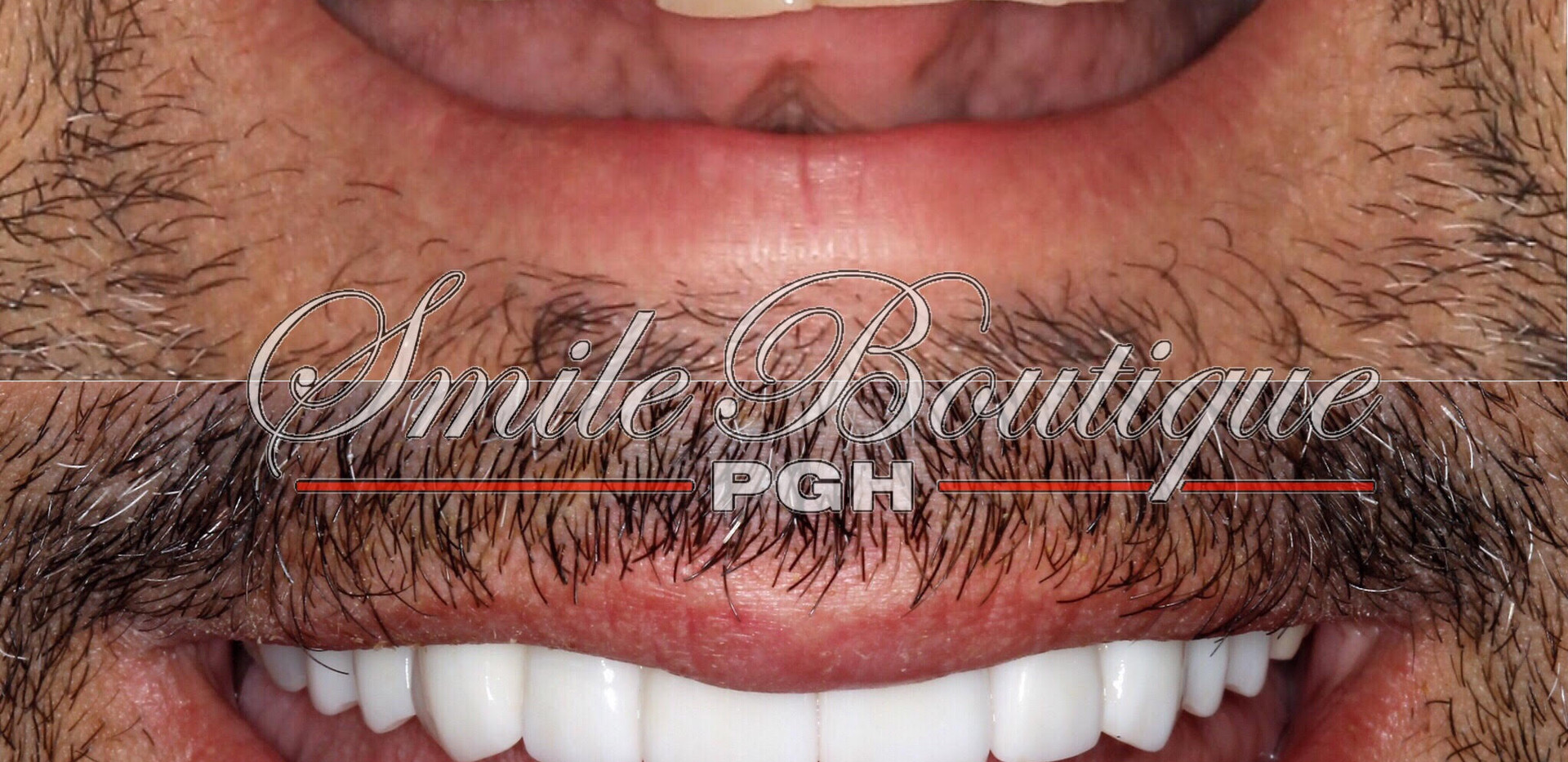 Veneers and Bridges
