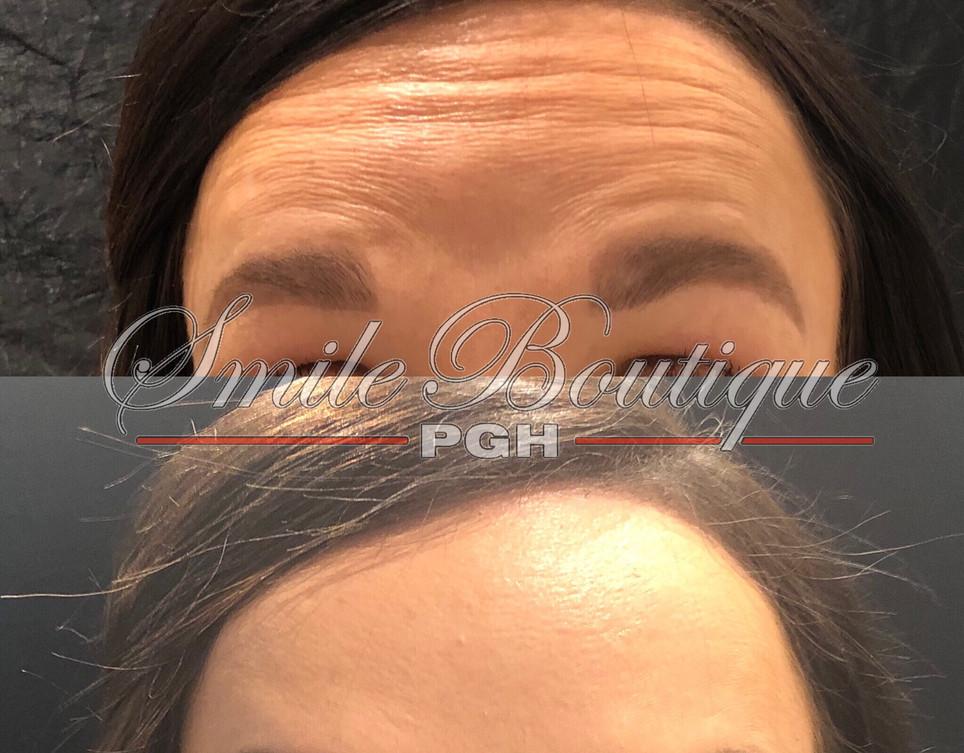 Forehead Treatment