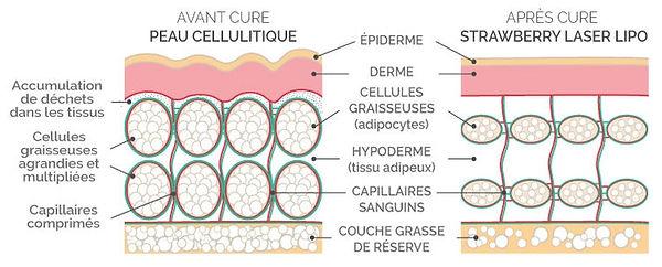 Lipo laser - beauty industry- lorgues-cure minceur- soin anti cellulite