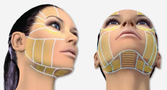 Hifu+ soin visage +anti age +lifting + beauty Industry