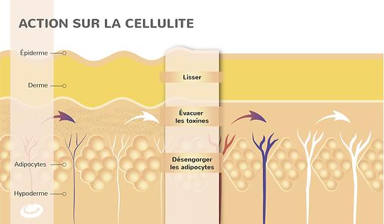 schema-peau-cellulite.png