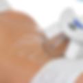 cryolipolyse-lipolaser-cellulite-soins-corps-pressotherapie-lorgues-beautyindustry-soinminceur-amincissement-institutdebeauté
