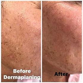 Dermaplaning, Beverly Hills Aesthetics Deal, Kent Dermaplaning Facial