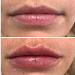 Lip filler Beverly Hills Aesthetics