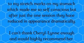 'My stretch marks... reduced in appearance dramatically'